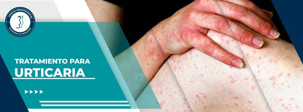 Urticaria o Alergia, racderma