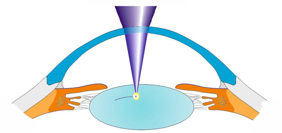 Der LenSurgeon erzeugt Mikroschnitte in der Linse des Auges, die als Gleitebenen wirken