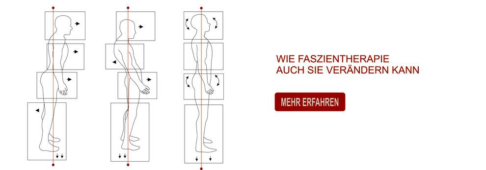 Faszientherapie - Beckenschiefstand - Haltung