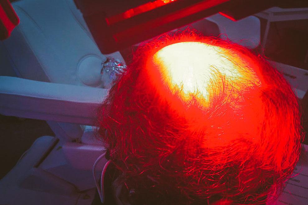 Photodynamische Therapie in der Laser- und Hautarztpraxis Daniela Billep in Berlin Spandau