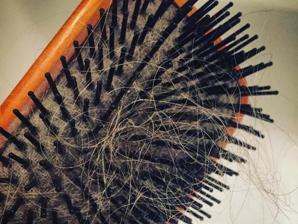 Haarausfall betrifft Männer als aus Frauen