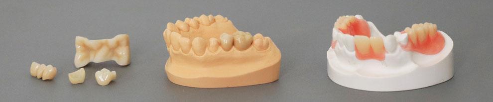 Zahnersatz in verschiedenen Arten