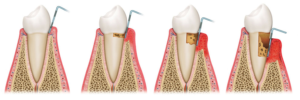 Parodontose beginnt oft schleichend und unbemerkt