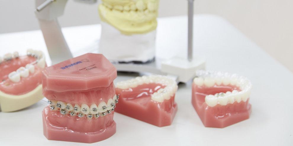 歯列矯正治療