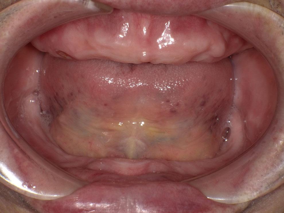 歯を全て喪失