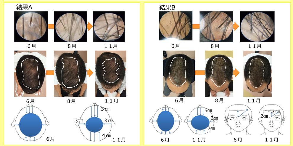 薄毛に対する鍼灸刺激を学会発表しました