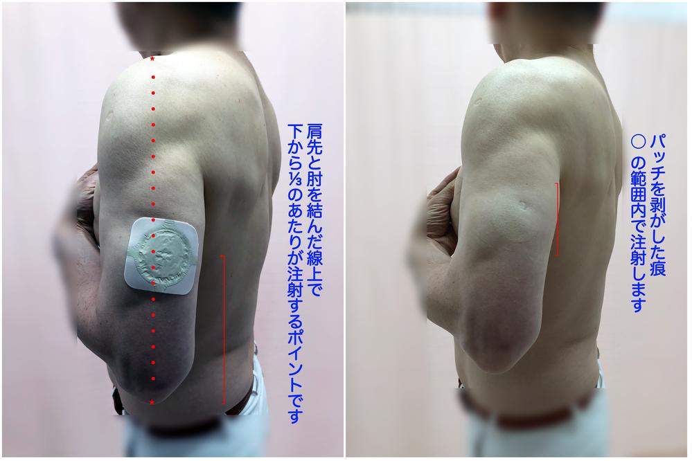 コロナ ワクチン 筋肉 注射