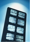 Tratamiento de periodontitis o piorrea
