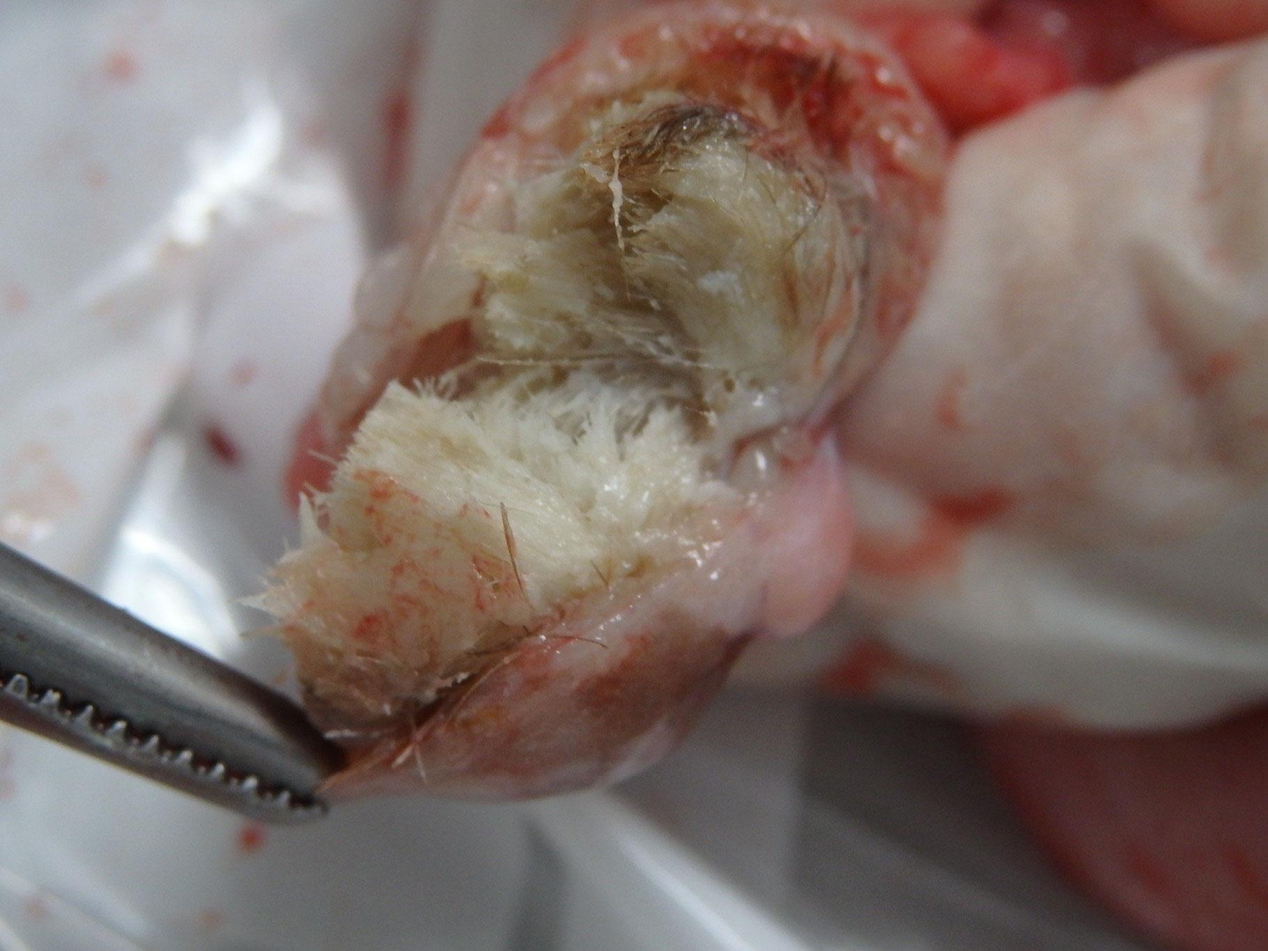 胎児 用 奇形 種 胎児奇形の診断を受けた両親のためのケア