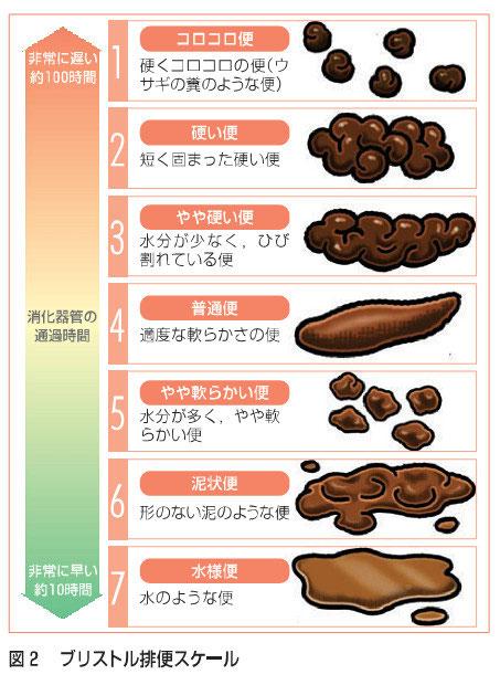 ブリストル便形状スケール - 豊...