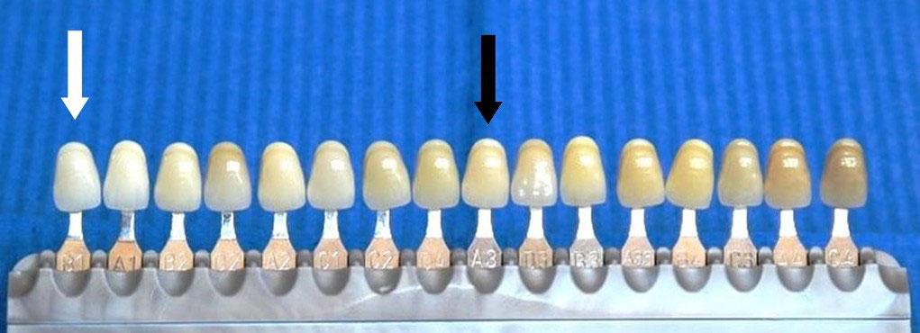Welche zahnfarbe ist die hellste