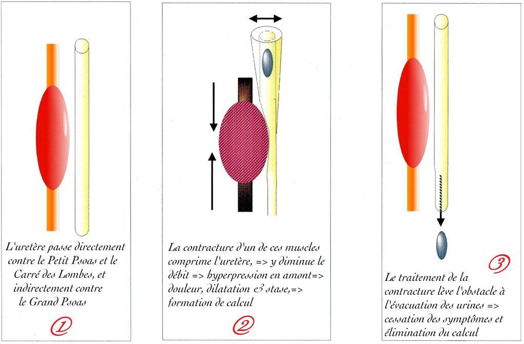 ▻ Coliques néphrétiques - www.brachy-myotherapie.com