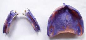 Prothesen und Teilprothese unterfüttern und auffüllen