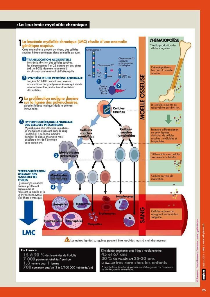 La leucémie myéloïde chronique en schémas