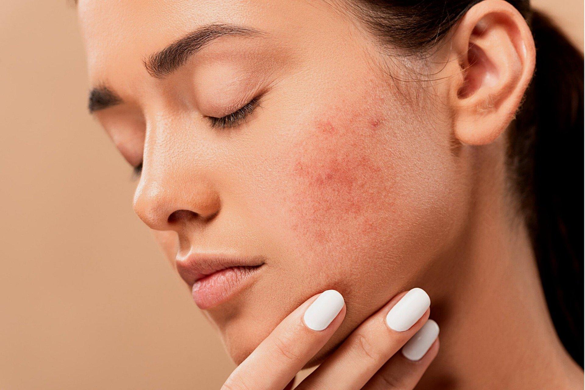 Wünschen Sie sich eine ganzheitliche Hautpflegeberatung?