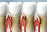 ちはら歯科歯周病治療