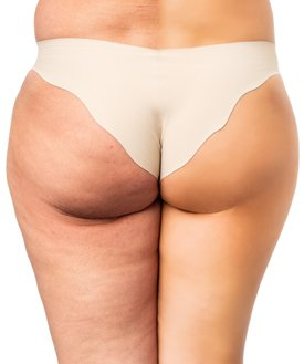 Beginnende Cellulite (links)