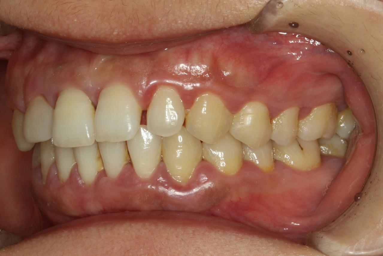 治療 病 歯 周