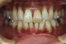 歯茎の再生 治療前
