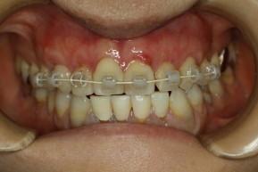 歯茎の再生後に矯正開始