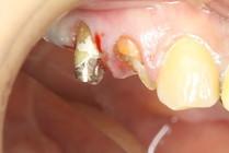 歯茎の中まで虫歯