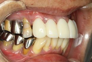 仮歯で固定した場合