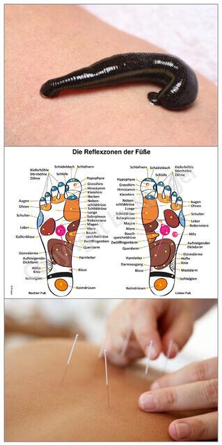 Blutegel-Therapie, Reflexzonen der Füße und Akupunktur