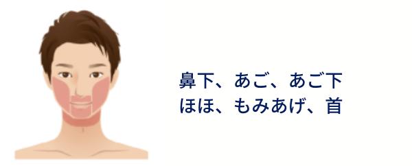 メンズエミナルクリニック ひげ脱毛 ヒゲ