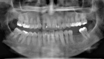 Panorama Bild mit fehlendem Zahn im Unterkiefer