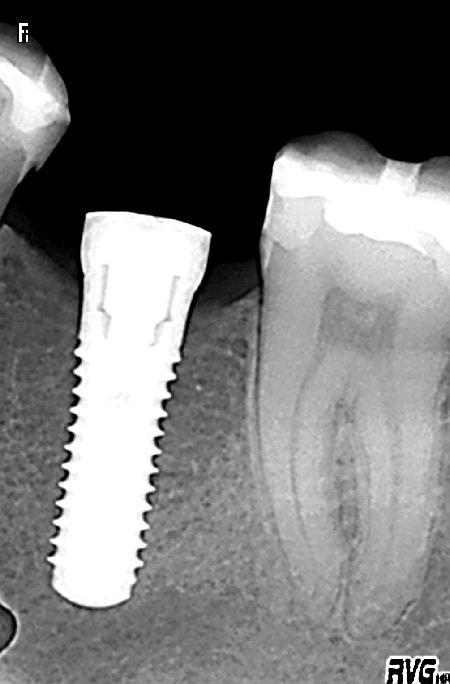 Kleines Detail Bild mit gesetztem Implantat