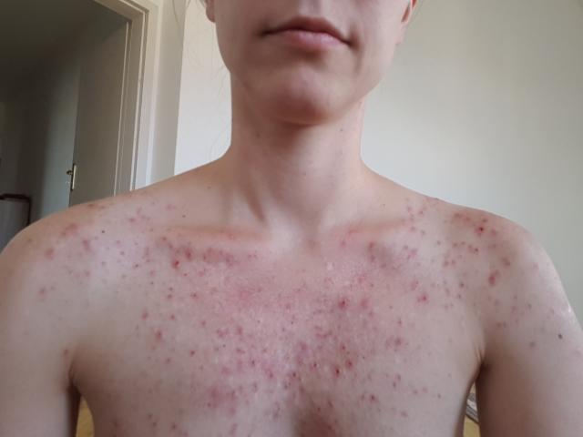 Depression heilen Skin Picking