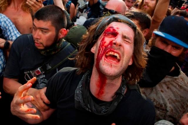 Politibrutalitet