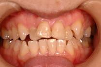 虫歯とは並び