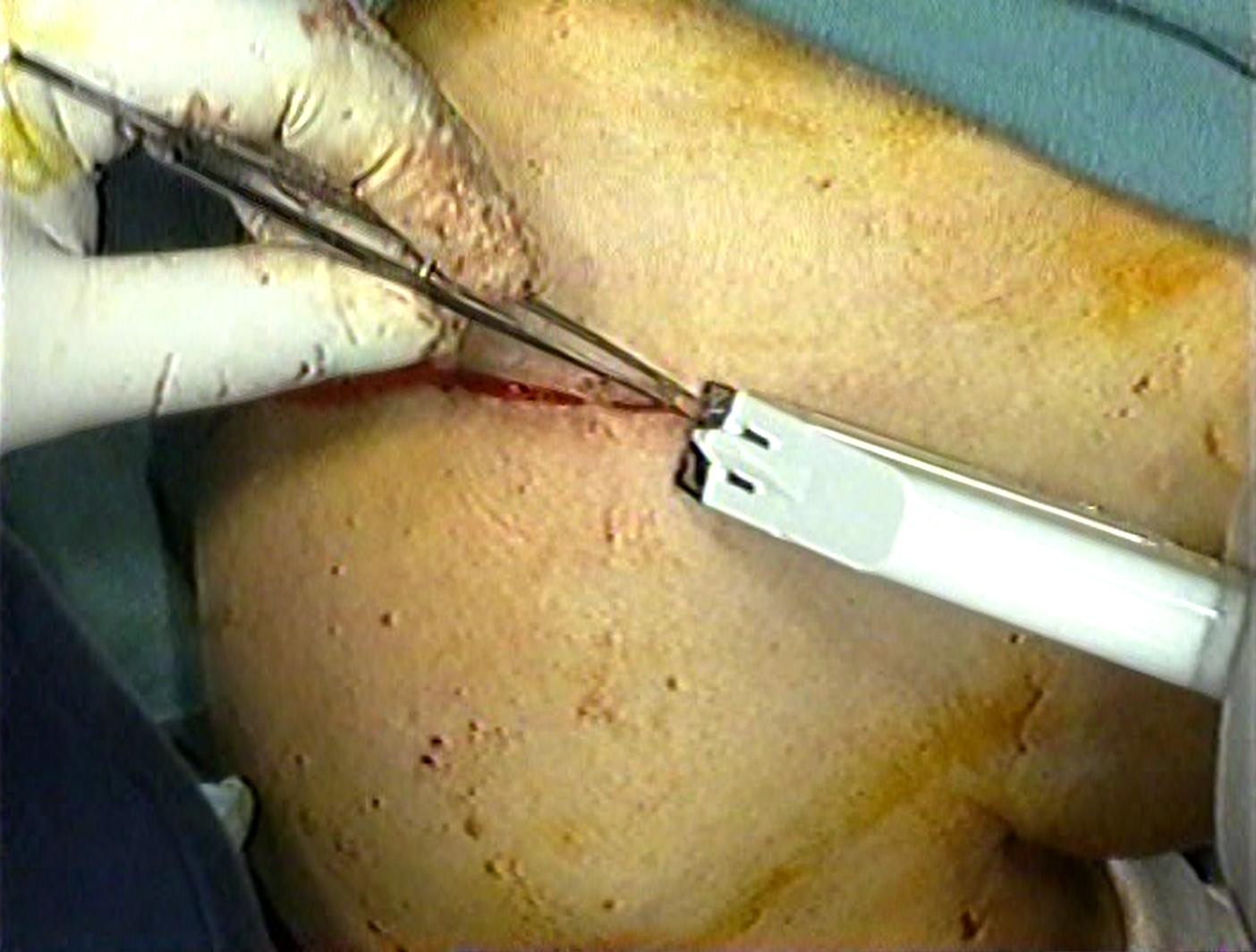 【閲覧注意】鎖骨外端骨折のオペ動画