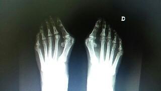 Radiografía de juanetes, durante estudio prequirúrgico