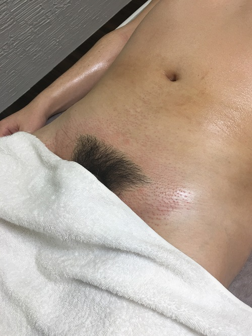 AFTER(Vラインと下腹部)