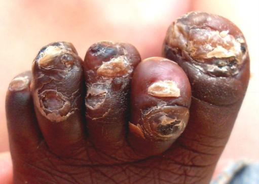 """Die Finger sind bereits komplett frei von Jiggers. An den Zehen erkennt man sehr gut die alten """"Wohnstätten"""" der Jiggers."""