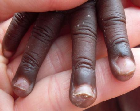 Die Finger sind bereits komplett frei von Jiggers.