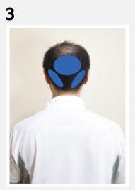 後頭部・首・髪の生え際の痛み