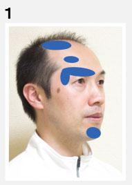 頭頂部・眉・額・口の下の痛み