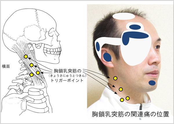 側頭部の頭痛のトリガーポイント