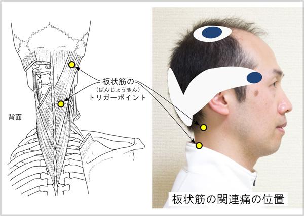 こめかみ頭痛のトリガーポイント