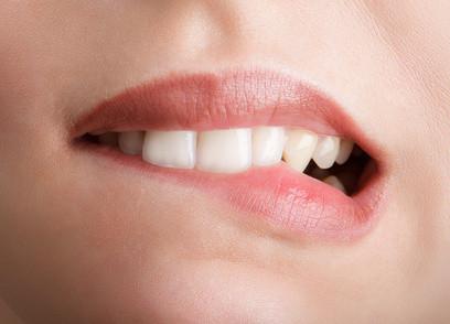 Wir kümmern uns besonders um Patienten mit Zahnarztangst.