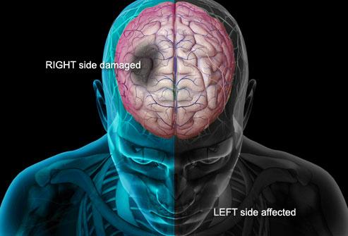 脳卒中後遺症 整体