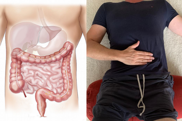 Restorative Yoga Darm und Rückenschmerzen René Hug