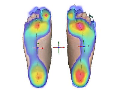 Überlagerte Darstellung 2D-Messung und dynamische Fußdruckmessung