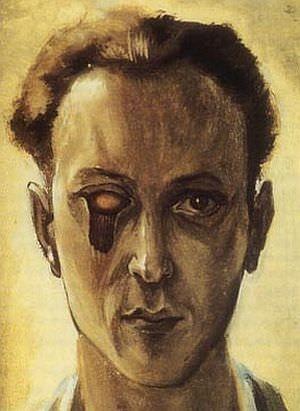ヴィクトル・ブローネル「眼球を摘出した自画像」(1931年頃)