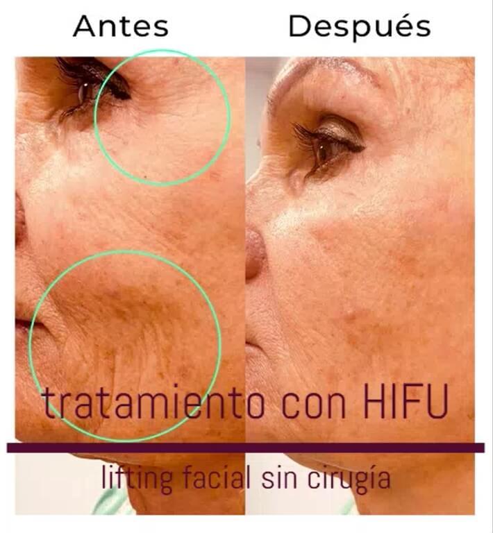 hifu lifting facial madrid
