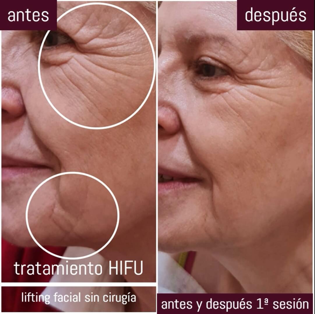 hifu facial antes y despues