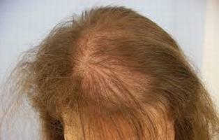 Die Extrahilfe vom Haarausfall